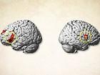 Área do cérebro é responsável por ignorar notícias ruins, aponta estudo