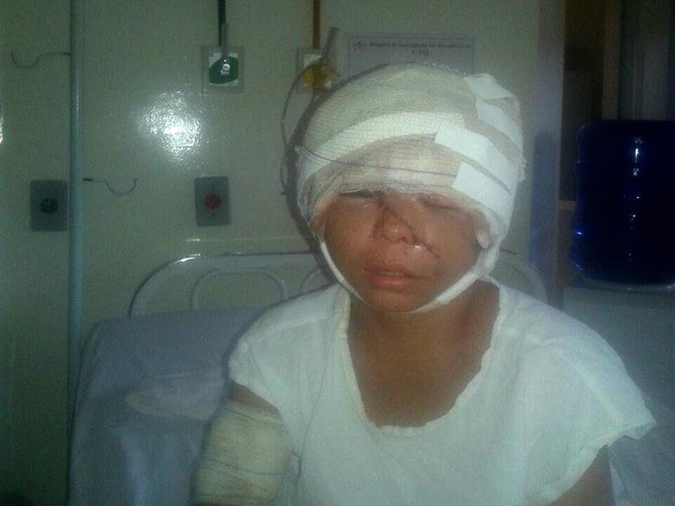 Menina de 12 anos foi vítima de escalpelamento em agosto de 2016 (Foto: Vaneide Silva/Arquivo Pessoal)