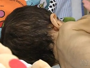 Bebê com 'ossos de vidro' permanece em hospital de Goiânia (Foto: Reprodução/TV Anhanguera)