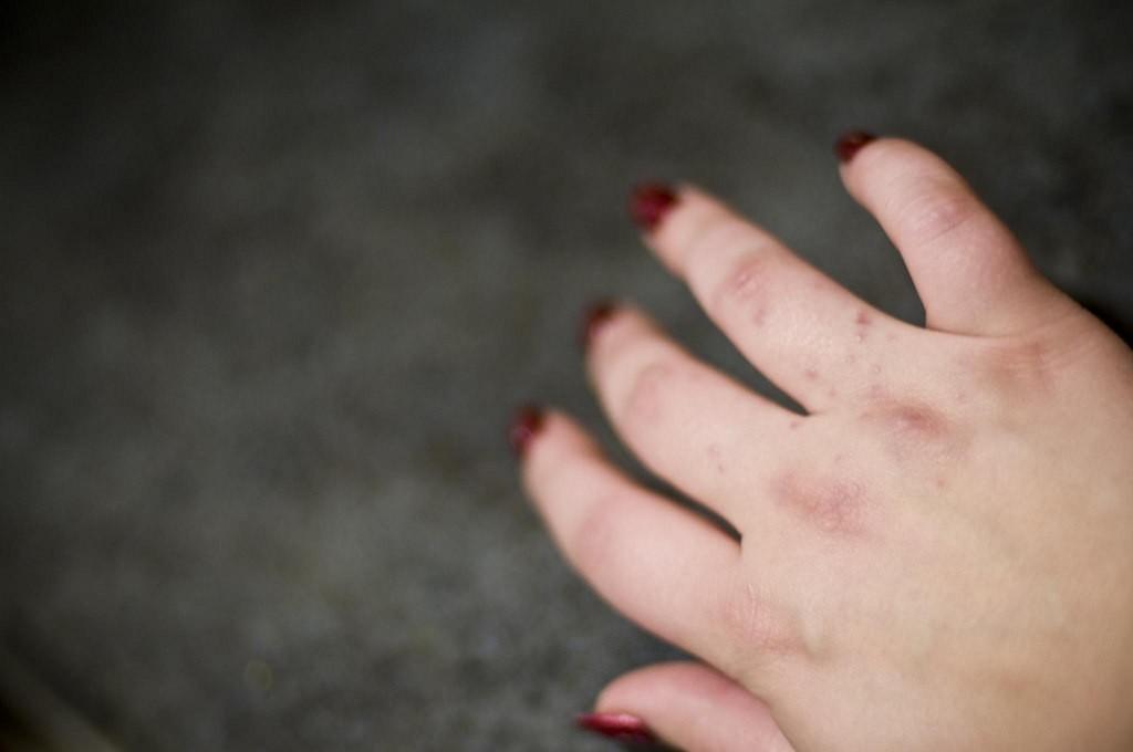 8 doenças de pele sobre as quais você precisa saber