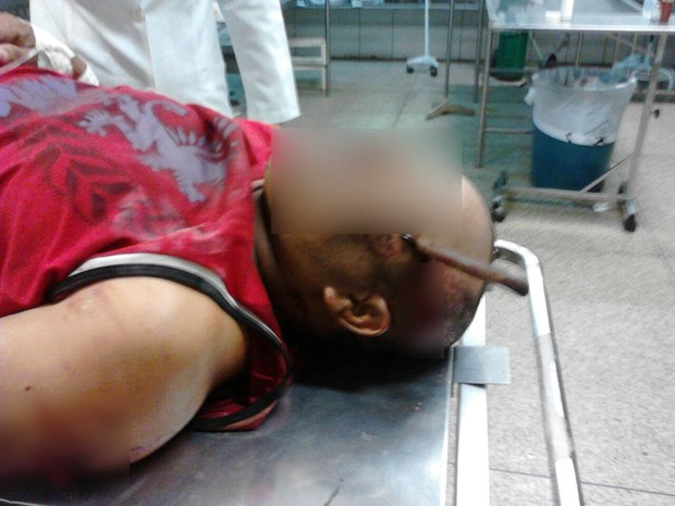 Vítima ficou com faca cravada na cabeça (Foto: Polícia Militar/Divulgação)