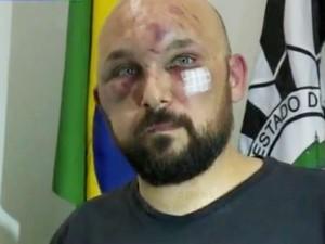 Braulio foi agredido e ficou com o rosto machucado (Foto: Reprodução/RBS TV)