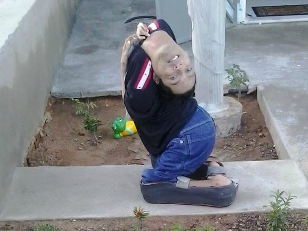 Claudio Oliveira, baiano de Monte Santo nasceu com cabeça virada para trás (Foto: Arquivo pessoal)