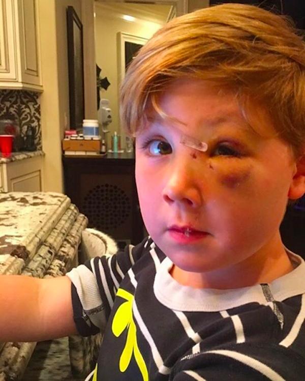 O pequeno Kash, filho da socialite Kim Zolciak, recuperado do ataque de um cachorro (Foto: Instagram)
