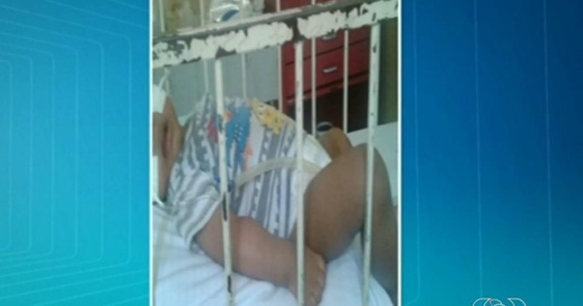 Bebê com hidrocefalia aguarda há 10 dias por vaga em UTI, em ... - Globo.com