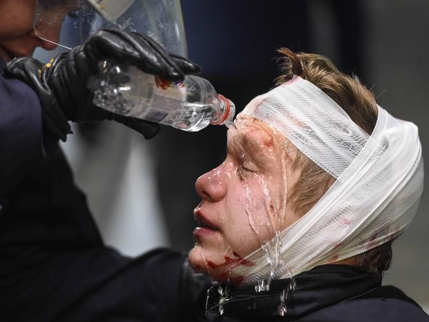 Um dos feridos no protesto neonazista recebe ajuda da polícia em Estocolmo (Foto: Jonathan Nackstrand/AFP)