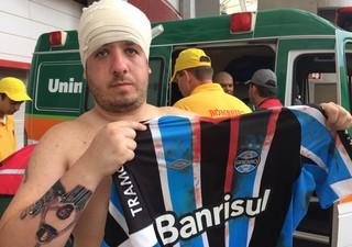 Torcedor do Grêmio é atingido por pedrada no Gre-Nal (Foto: Diego Guichard/GloboEsporte.com)