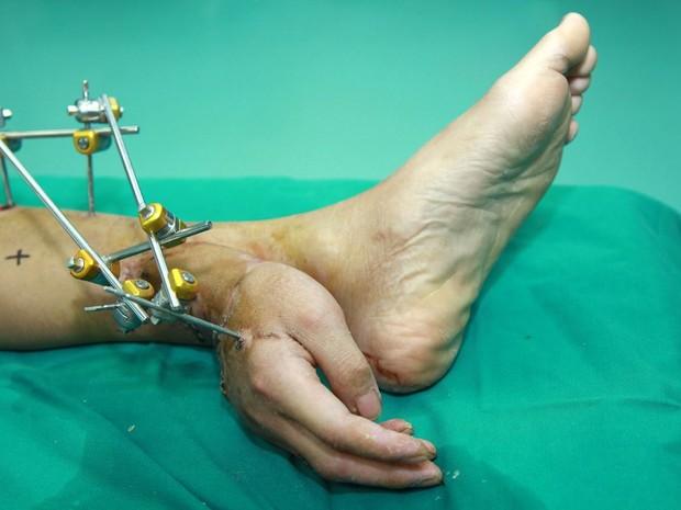 Chinês teve mão reimplantada junto ao tornozelo para órgão receber fluxo sanguíneo (Foto: Rex Images)