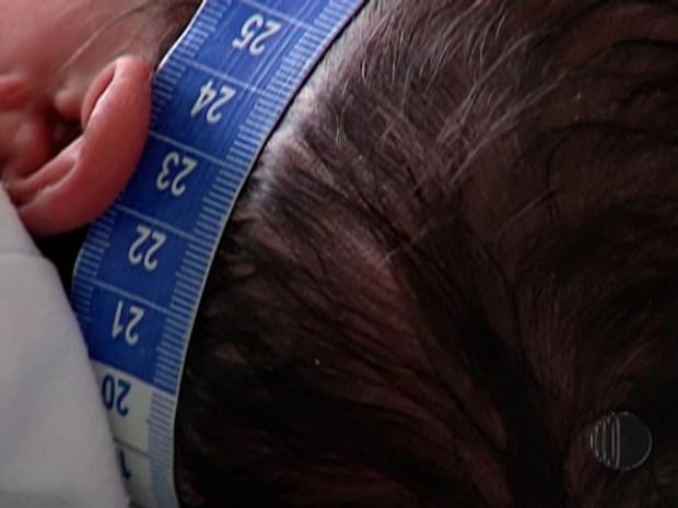 Ministério da Saúde atualiza critérios da microcefalia (Foto: Reprodução/ TV Diário)