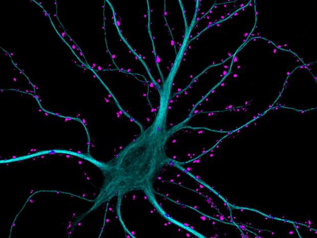 Neurônios do hipocampo recebendo estímulos  (Foto: Courtesy of Nikon Small World/ Dr. Kieran Boyle, University of Glasgow, Institute of Neuroscience and Psychology )