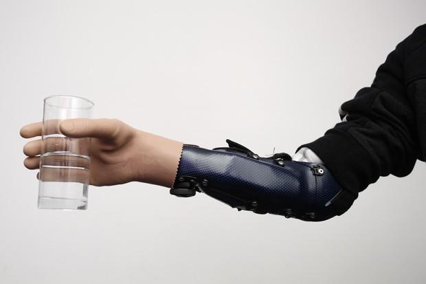 Paciente usa mão biônica para segurar copo  (Foto: Dieter Nagl/AFP)