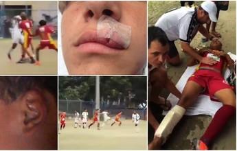 Sub-15: Briga entre Tiva e Porto Vitória  termina com 2 jovens hospitalizados
