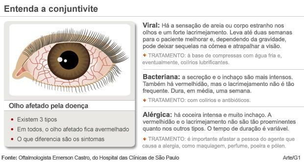 0dd110efc2456 Bem Estar - Uso incorreto das lentes de contato pode provocar ...