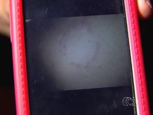 Foto em celular mostra marca de mordida no corpo de adolescente que diz ter sofrido estupro coletivo em Indiara, Goiás (Foto: Reprodução/TV Anhanguera)