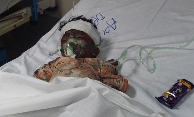 Criança ferida no ataque suicida está internada em hospital em Lahore (Foto: Farooq Naeem/AFP)