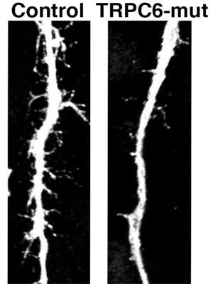 Imagem mostra diferença entre neurônio de pessoa sem autismo (à esquerda) e de autista (Foto: Alysson Muotri/Arquivo Pessoal)