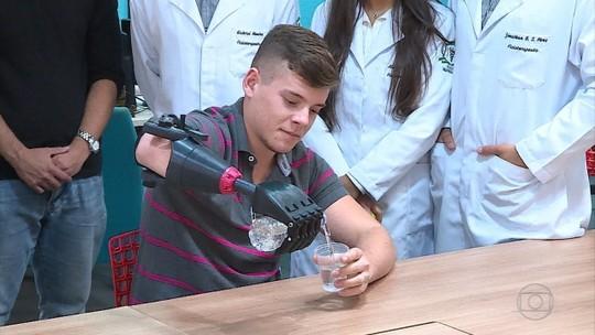 Jovem recebe prótese feita em impressora 3d e com custo reduzido