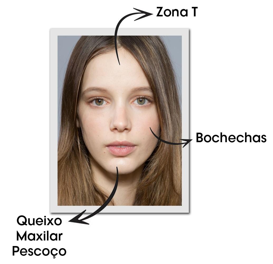 Guerra à acne: saiba as causas das espinhas em cada área do rosto