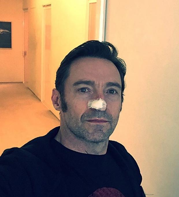 Hugh Jackman (Foto: Reprodução/Instagram)