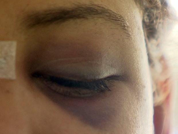 Jovem foi espancada por ex-namorado (Foto: Reprodução/TV Tribuna)