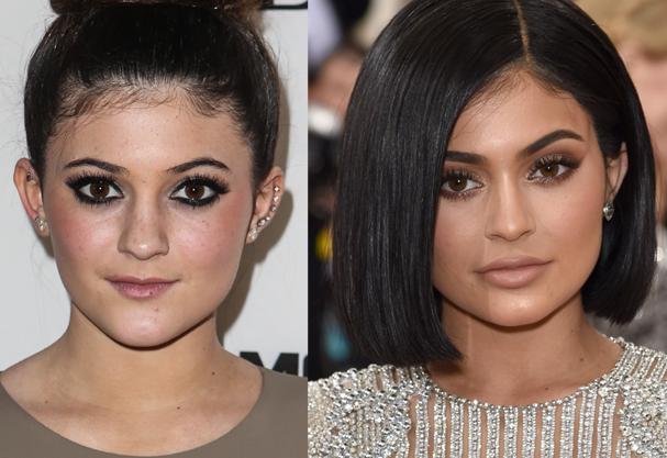 Kylie Jenner antes e depois (Foto: Instagram/Reprodução)
