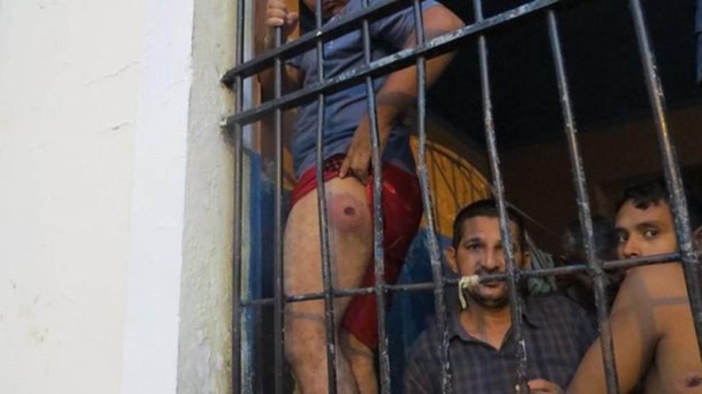 Preso mostra perna machucada durante chacina no Compaj (Foto: Felipe Souza/BBC Brasil)
