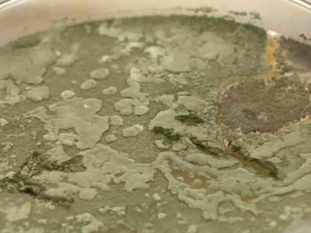 Fungo encontrado em aparelho de biometria em Campinas (Foto: Reprodução/ EPTV)