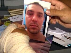 Marques mostra foto com o olho roxo tirada logo após as agressões (Foto: Valdinei Malaguti/ EPTV)