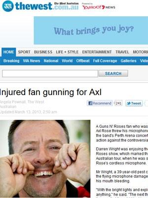 Axl Rose le rompe los dientes a un fan Dentes