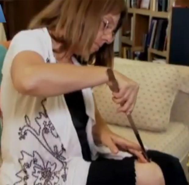 Apesar dos médicos condenarem a atitude, mulher mantém rotina, que já rendeu mais de 50 mil picadas (Foto: Reprodução)