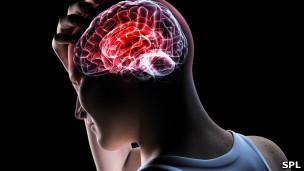 Cérebro (Foto: SPL)