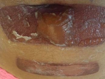 Após se submeter ao procedimento, ela ficou com ferimentos na barriga (Foto: Reprodução/ TVCA)