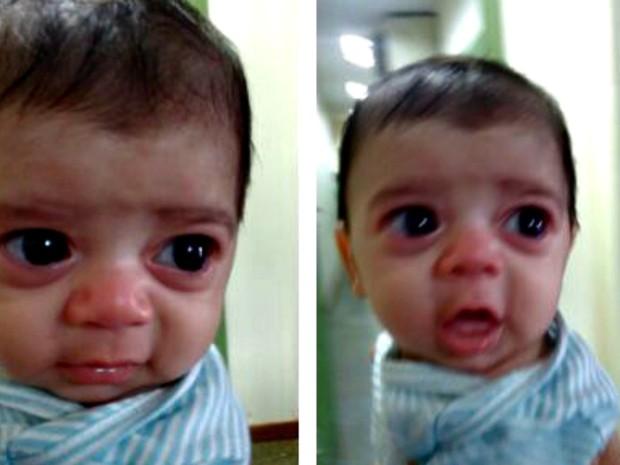 Thomas foi diagnosticado com glaucoma há pouco mais de quatro dias, conta a família  (Foto: Sandra Araújo/Arquivo pessoal)