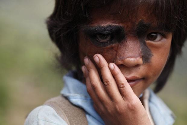 Bhawana Thami posa tímida para o fotógrafo em Dusikharka, a 345 km de Catmandu, dois meses depois de ter passado pela cirurgia (Foto: Narendra Shrestha/EFE)