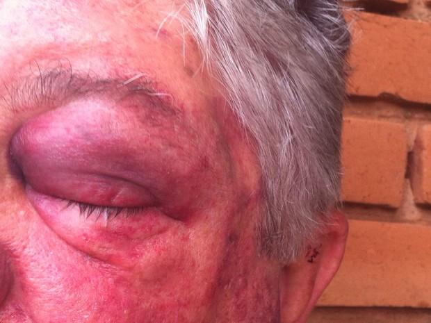 Idoso levou coronhadas no rosto e na cabeça durante assalto em Araraquara (Foto: Daiane Bombarda / Tribuna Araraquara)