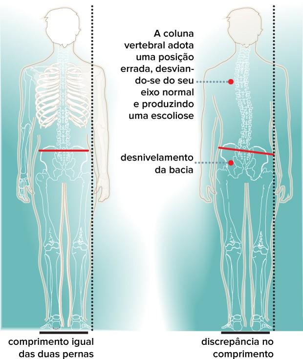 eu atleta dismetria pernas (Foto: eu atleta)