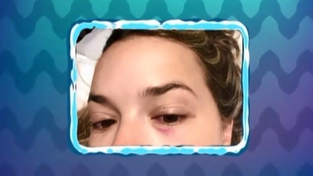 Thaeme machucou o olho na prova (Foto: TV Globo)