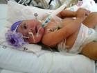 Justiça manda Estado comprar marca-passo para que bebê sobreviva