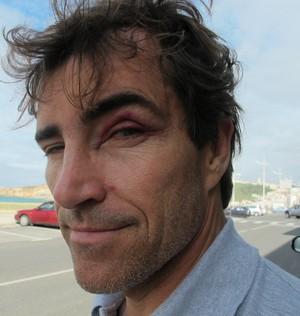 Carlos Burle Nazaré surfe olho roxo (Foto: Carol Fontes)