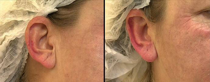 Antes e depois do tratamento para a orelha (Foto: TV Globo)