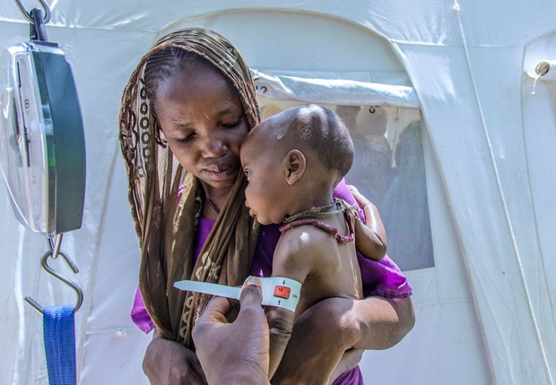 Criança é tratada em programa contra desnutrição patrocinado pelo Unicef na África ; pobreza ; abaixo da linha da pobreza ;  (Foto: Unicef)