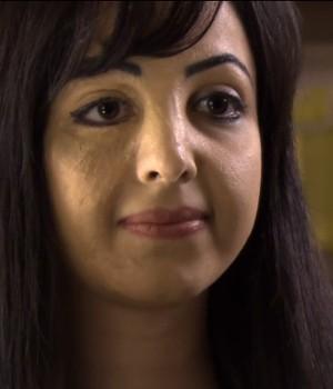 Hoje, aos 27 anos, Basma gosta dos dois lados de seu rosto  (Foto: Reprodução)