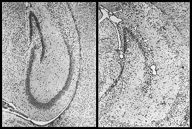 Hipocampo do cérebro de camundongo saudável (esq.) e infectado por zika (dir.) (Foto: Bell, Field e Narang (NGH))