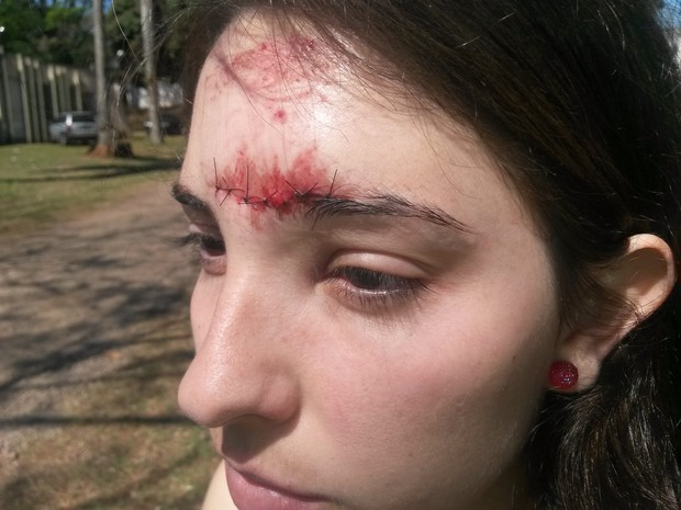 """""""Enquanto eu cuspia sangue, os vigias riam lá de dentro da universidade"""", diz a estudante Tamires Schmitt (Foto: Honório Silva/RPC TV)"""