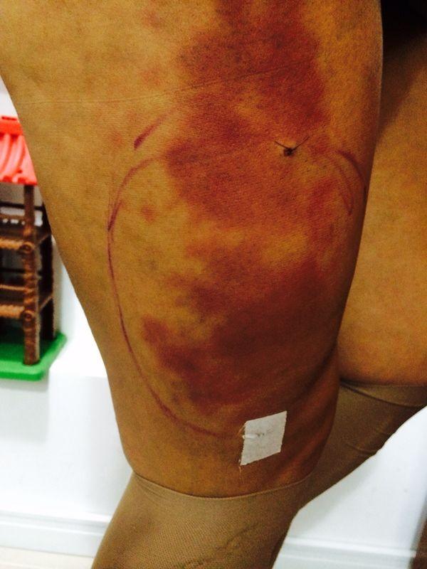Cirurgia para retirada de próteses da perna de Andressa Urach (Foto: Divulgação)