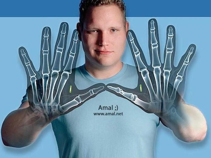 Amal Graafstra tem chips RFID em suas mãos (Foto: Reprodução/Amal.net)