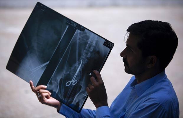 No dia 7 de abril de 2012,  o paquistanês Safdar Ali Shah, de 36 anos, passou por exames por causa das constantes dores abdominais. Um raio-X descobriu o motivo da dor: ele vivia com uma pinça hemostática no corpo. O objeto foi deixado no corpo de Shah por uma equipe médica durante uma cirurgia que ele havia se submetido nas costas em 2000 (Foto: Akhtar Soomro/Reuters)