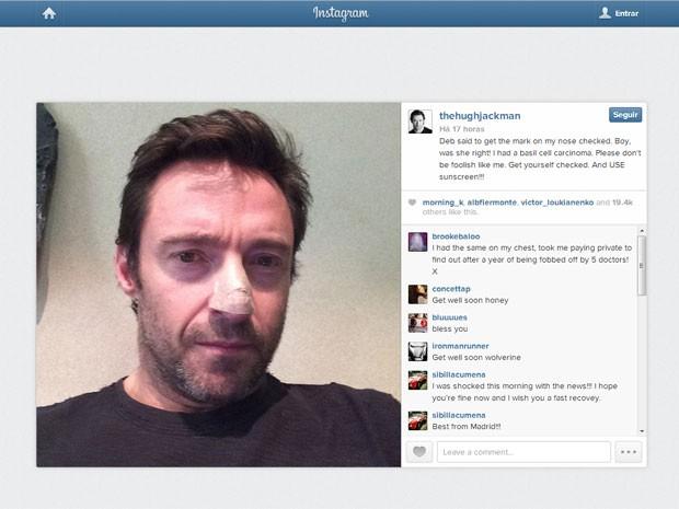 O ator Hugh Jackman mostra curativo no nariz; no Instagram, ele revelou que tem câncer de pele (Foto: Reprodução/Instagram/Hugh Jackman)