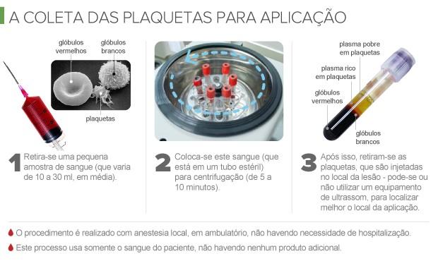 info PRP - Plasma Rico em Plaquetas (Foto: arte esporte)