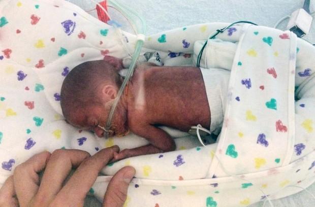 Bebê nasceu com 680 gramas durante cruzeiro em caribe  (Foto: Emily Morgan/AP)